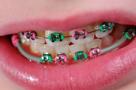 Hukum Memakai Pendakap Gigi