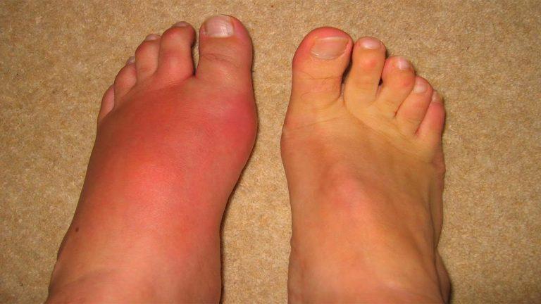 Cara Merawat Penyakit Gout Yang Paling Pelik