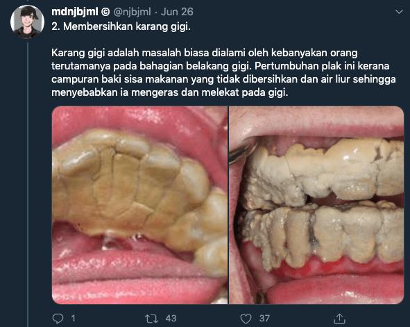 """""""Gusi Saya Asyik Berdarah Bila…,"""" Doktor Gigi Kongsi 4 Kebaikan Buat 'Scaling' 6 Bulan Sekali"""
