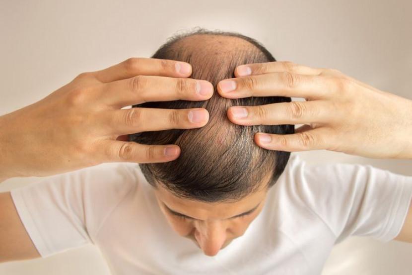 Lelaki Umur Belum 30 Tahun, Tapi Rambut Dah Nipis? Ambil Tahu 10 Perkara Ini Untuk Elak Rambut Gugur